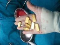 Dokter di India Temukan 12 Keping Emas dalam Perut Pasien