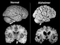 Ini Temuan Baru Ilmuwan Indonesia Tentang Alzheimer