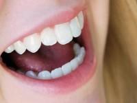 10 Cara Merawat Kesehatan Gigi