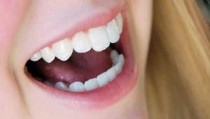 Merawat gigi
