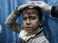 Anak Gaza yang terluka