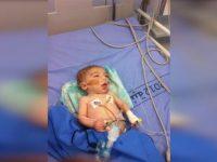 Gas Air Mata Israel Tewaskan Seorang Bayi di Palestina