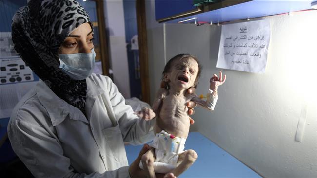 UNICEF: 1.100 Anak di Ghouta, Suriah, Alami Malnutrisi
