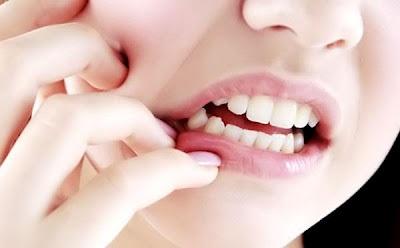 Ini 10 Hal Tak Terduga yang Bisa Merusak Gigi