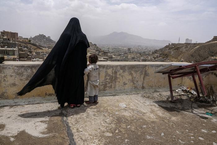 PBB: Yaman Hadapi Bencana Kelaparan Terbesar di Dunia