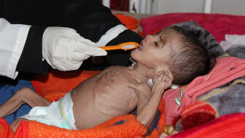 Blokade Arab Saudi Akan Renggut Ratusan Hidup Warga Yaman dalam Satu Minggu