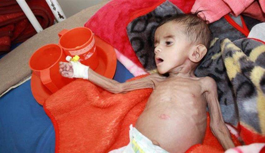 Palang Merah Internasional: Kelaparan Membuat Yaman Sekarat