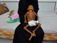 Perang yang Terlupakan: Yaman Mendekati Titik Ekstrem Kelaparan