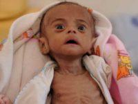 UNICEF: Perang Adalah Neraka Bagi Anak-anak Yaman