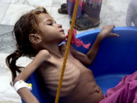 In this Aug. 25, 2018 image made from video, a severely malnourished girl is weighed at the Aslam Health Center in Hajjah, Yemen. Around 2.9 million women and children are acutely malnourished; another 400,000 children are fighting for their lives. Yemen's civil war has wrecked the impoverished country's already fragile ability to feed its population. (AP Photo/Hammadi Issa)