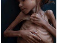 Facebook Hapus Sementara Foto Anak Yaman yang Kelaparan