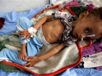 Akibat Agresi Saudi, 85.000 Anak Yaman Alami Malnutrisi